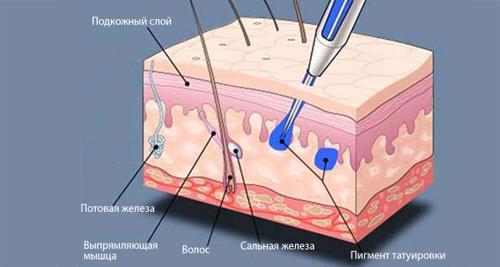Процедура татуажа в разрезе