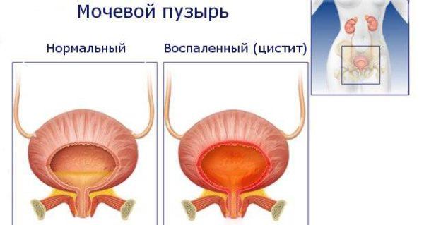 Цистит и норма для мочевого пузыря