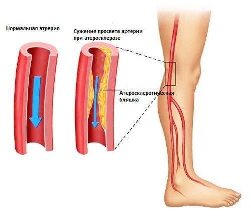 Атеросклероз в ноге